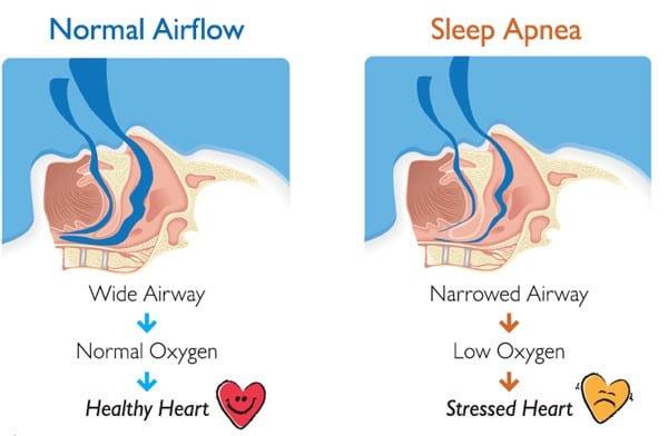 Sleep apnea นอนกรน หยุดหายใจ